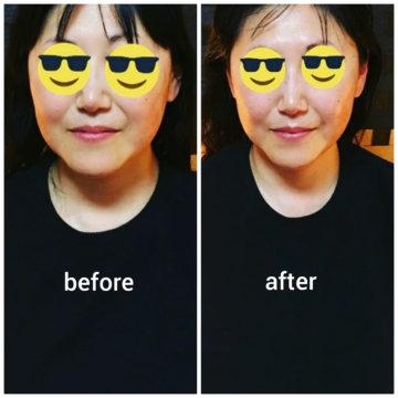 【グロースファクターフェイシャルbefore after24】小顔美肌幹細胞エステの画像