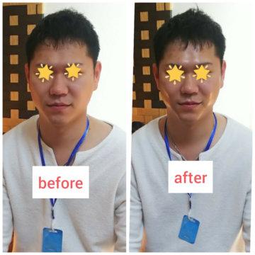 【グロースファクターフェイシャルbefore after38】小顔美肌幹細胞エステの画像
