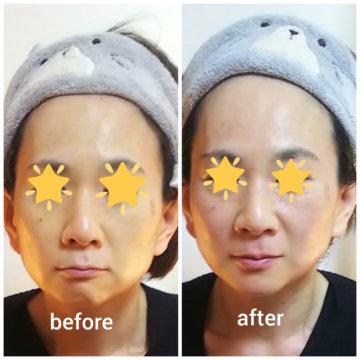 【グロースファクターフェイシャルbefore after41】小顔美肌幹細胞エステの画像