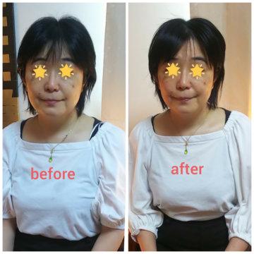 【グロースファクターフェイシャルbefore after40】小顔美肌幹細胞エステの画像
