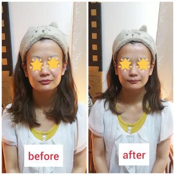 【グロースファクターフェイシャルbefore after49】小顔美肌幹細胞エステの画像