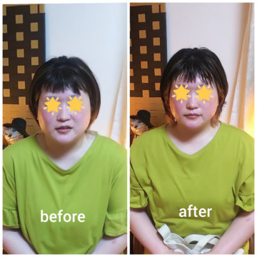 【グロースファクターフェイシャルbefore after46】小顔美肌幹細胞エステの画像