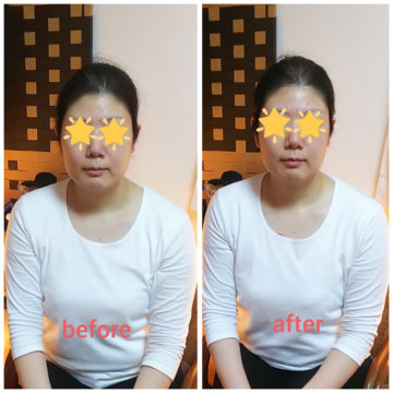 【グロースファクターフェイシャルbefore after51】小顔美肌幹細胞エステの画像