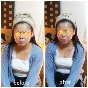 【グロースファクターフェイシャルbefore after50】小顔美肌幹細胞エステの画像