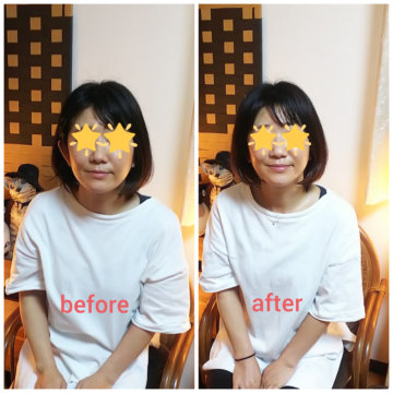 【グロースファクターフェイシャル  before after54】小顔美肌幹細胞エステの画像