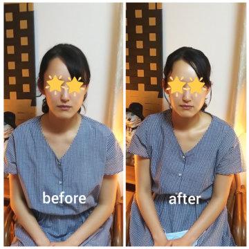 【グロースファクターフェイシャル  before after55】小顔美肌幹細胞エステの画像