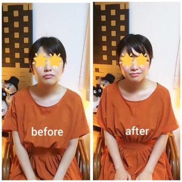 【グロースファクターフェイシャルbefore after60】お顔のくすみやむくみが改善されてスッキリ小顔になって頂けましたね♪の画像