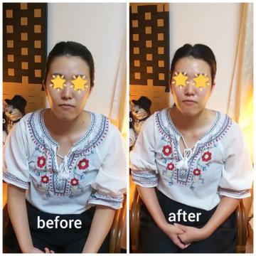 【グロースファクターフェイシャルbefore after62】小顔美肌幹細胞エステの画像