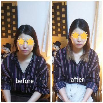 【グロースファクターフェイシャルbefore after64】小顔美肌幹細胞エステの画像