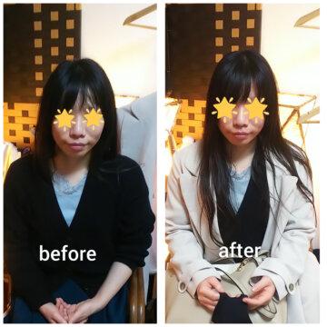 【グロースファクターフェイシャルbefore after70】小顔美肌幹細胞エステの画像