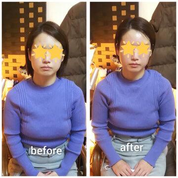 【グロースファクターフェイシャルbefore after72】小顔美肌幹細胞エステの画像