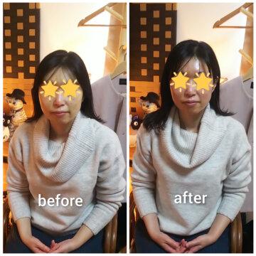 【グロースファクターフェイシャルbefore after73】小顔美肌幹細胞エステの画像
