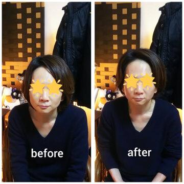 【グロースファクターフェイシャルbefore after78】小顔美肌幹細胞エステの画像