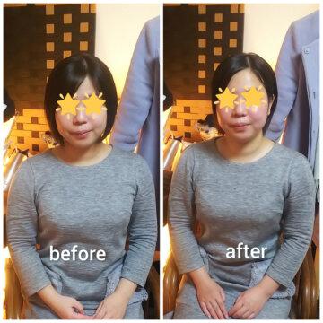 【グロースファクターフェイシャルbefore after80】小顔美肌幹細胞エステの画像