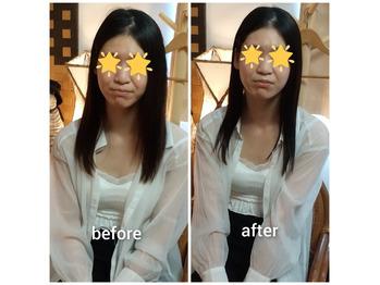 【フェイシャルbefore after100】美肌小顔エステの画像