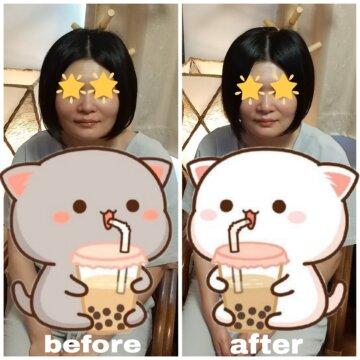 【フェイシャル before after99】小顔美肌エステの画像