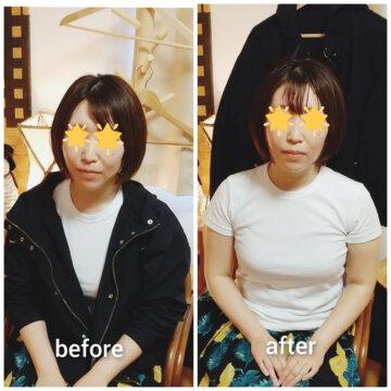 【フェイシャルbefore after101】美肌小顔エステの画像